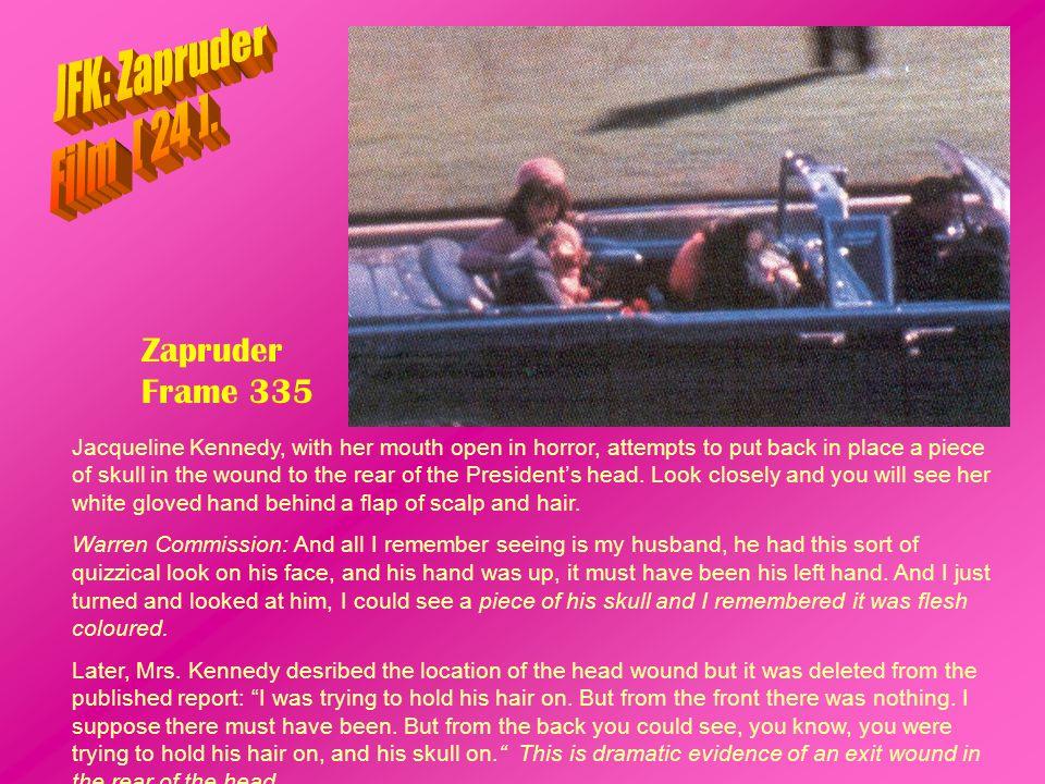 JFK: Zapruder Film [ 24 ]. Zapruder Frame 335